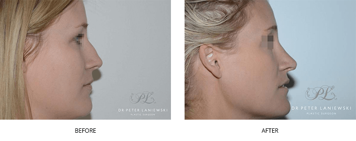 nose job before and after - image 010 - side view