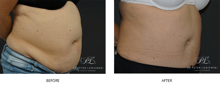 Abdominoplasty surgery before and after, photo 01, right side view