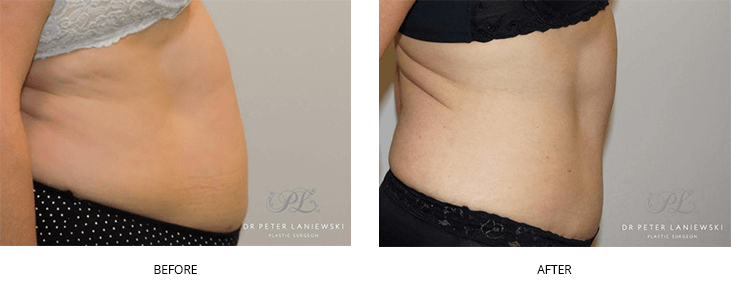 abdominoplasty surgery - before and after - image 003