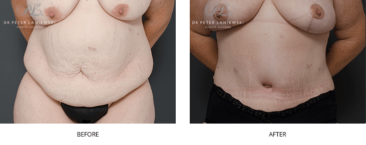Tummy tuck, before and after, new image