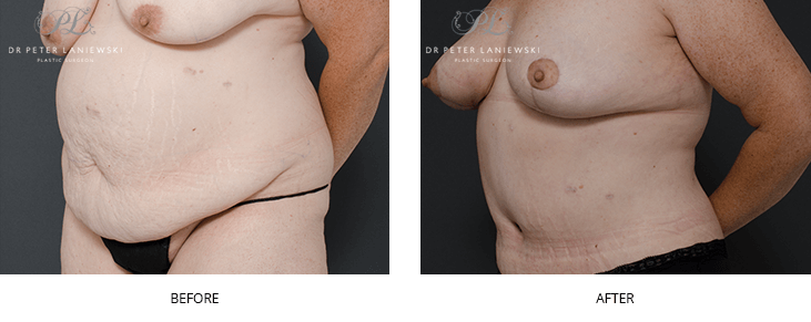 Abdominoplasty surgery, before and after, photo 01, angle view