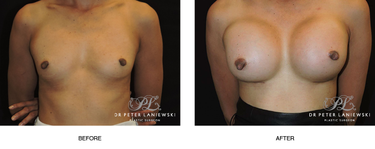 breast enlargement before and after - image 002