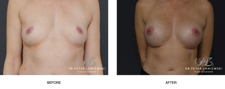 breast implants before and after - image 004