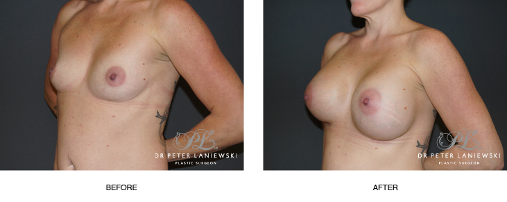 breast implants before and after - image 006