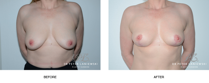 breast lift surgery before and after photos - image 001