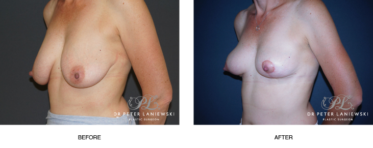 breast lift surgery before and after photos - image 003