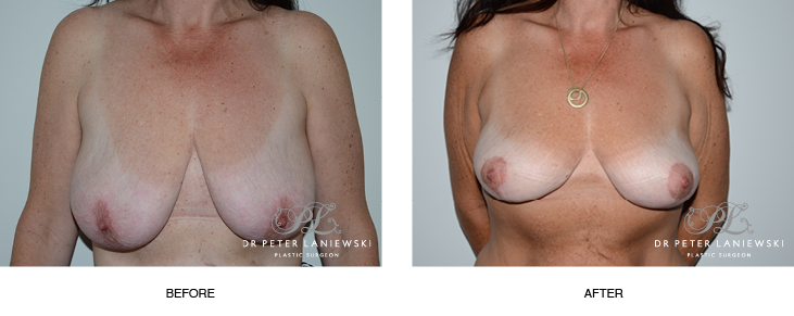 breast lift surgery before and after photos - image 005