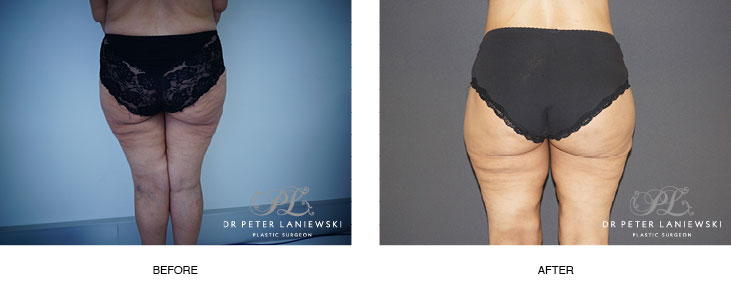 thigh lift before and after - image 002