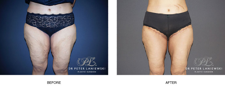 thigh lift before and after - image 003
