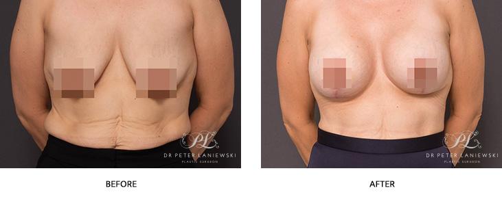 Breast Aug 08