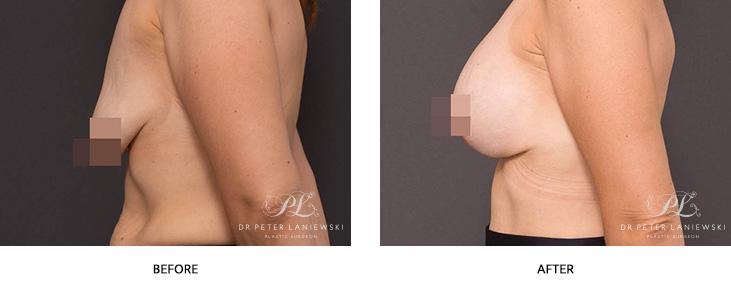 Breast Aug 09