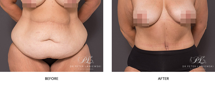 tummy tuck - abdominoplasty - before and after - image 001