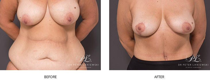 Tummy tuck before and after photo 01, front view