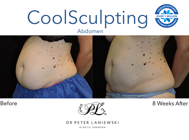Body coolsculpting before and after, photo 10a, female patient, angle view