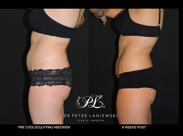 Body CoolSculpting before and after, photo 11a