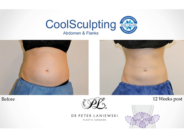 Body CoolSculpting, before and after, photo 12a, front
