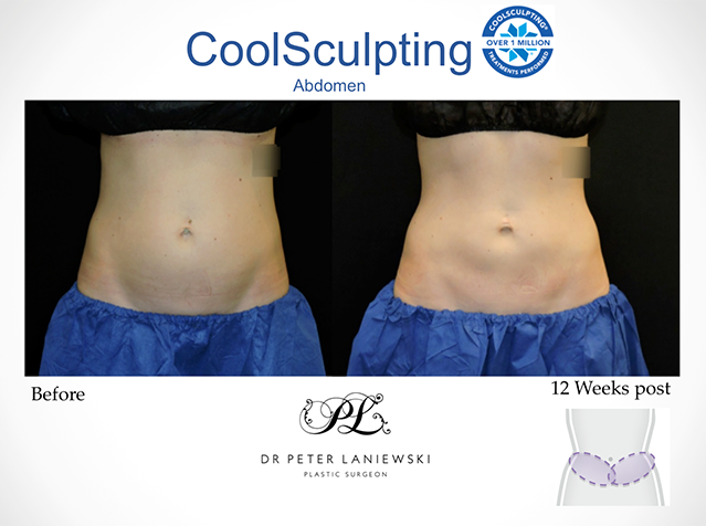 Female patient, before & after CoolSculpting, photo 13a