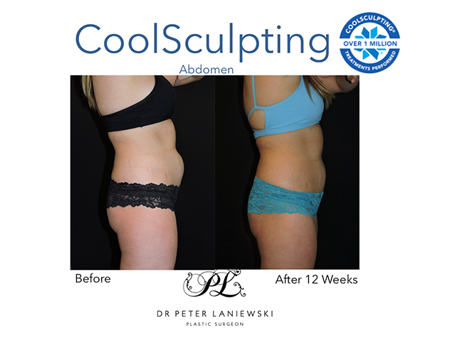 Fat freezing, before and after gallery, photo 14a