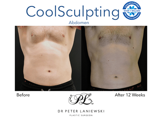 Cryolipolysis before and after, photo 15a
