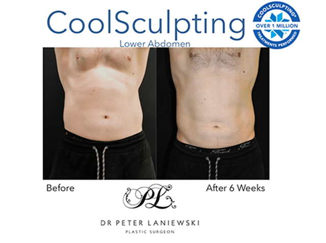 Body CoolSculpting before and after, photo 016a