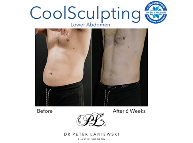 Fat freezing before and after, photo 17a, Dr Laniewski