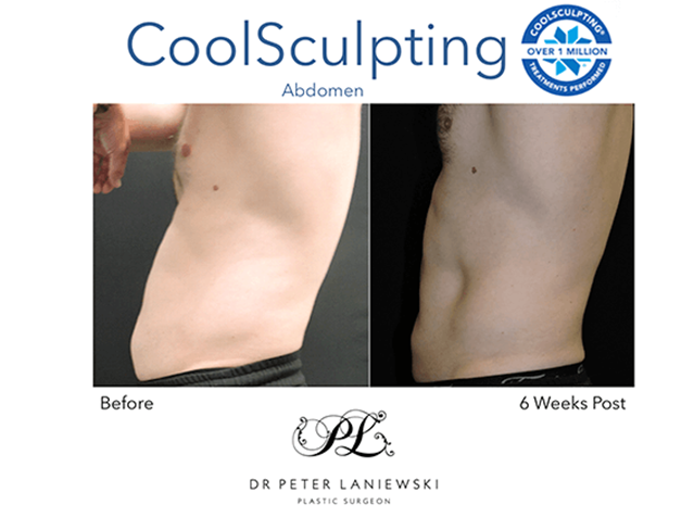 Male CoolsSculpting, before and after photo 18a