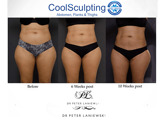 Female body coolsculpting before and after, photo 019a, pre and post treatment