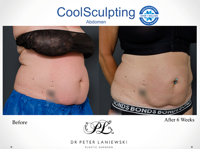 Female body CoolSculpting before and after, photo 01a