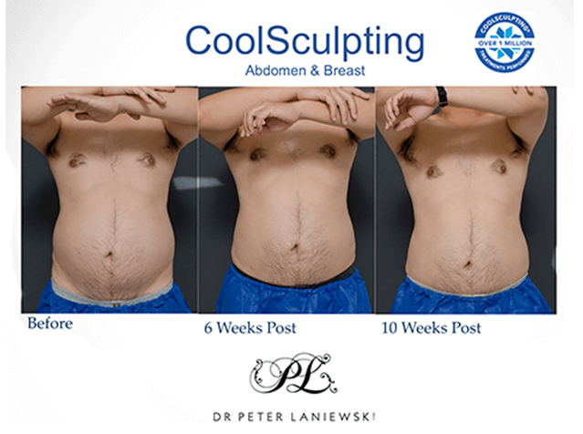 Body CoolSculpting before and after, photo 020a, 3 images