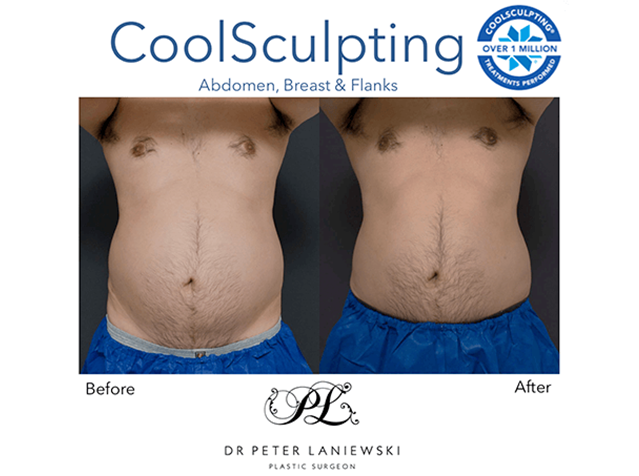 Male patient, fat freezing before and after, photo 21a