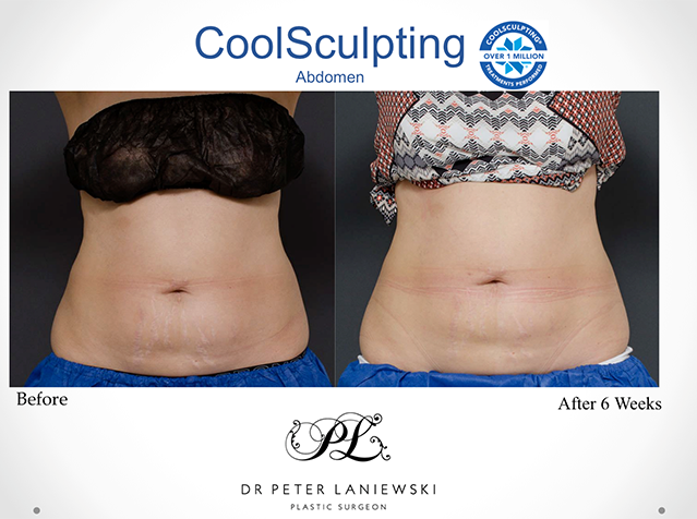 Female body coolsculpting before and after, photo 02a