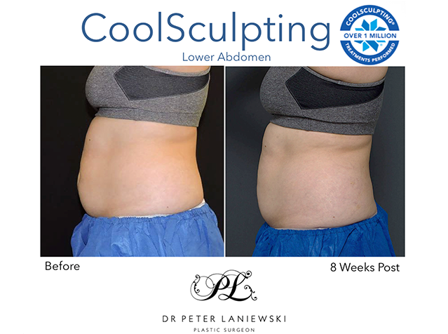 Female CoolSculpting, before and after photo 03a