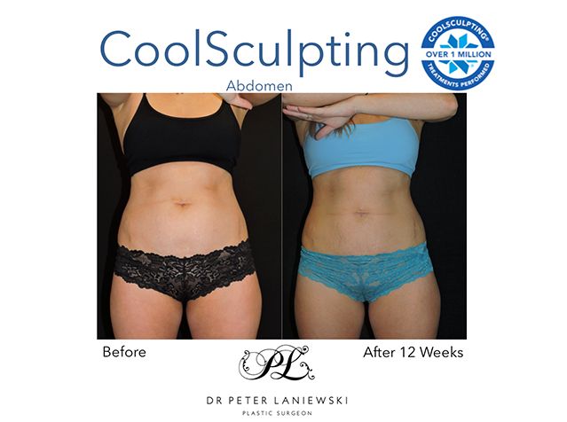 Female body fat freezing, before and after photo 04a