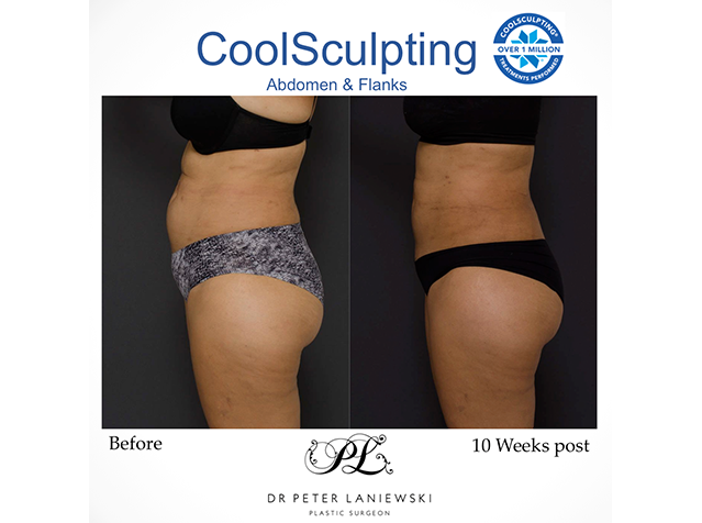 Female patient, body coolsculpting - photo 06a