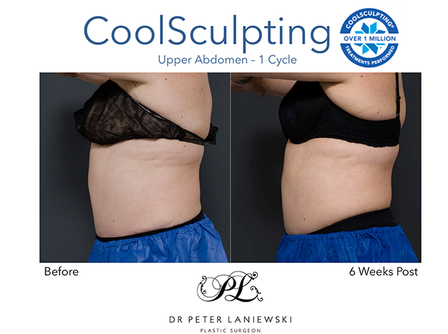 CoolSculpting before and after, photo 07a, female