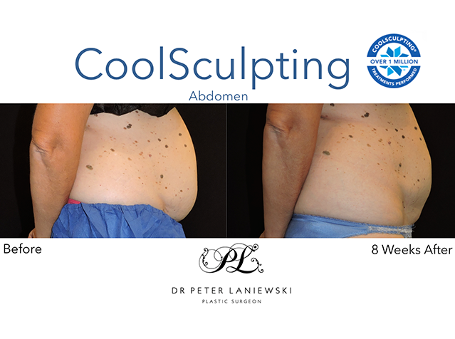 Body CoolSculpting, before and after, photo 08a