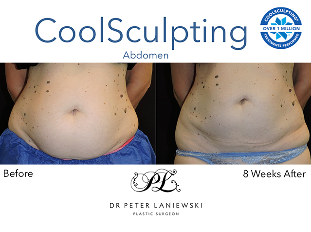 Female body coolsculpting before and after, photo 09a