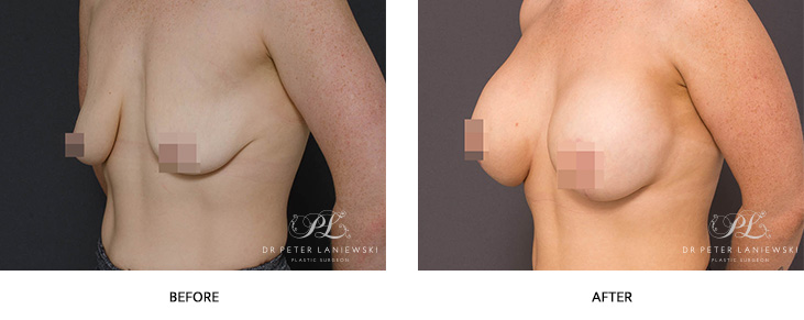 breast lift with implants before and after - image 002