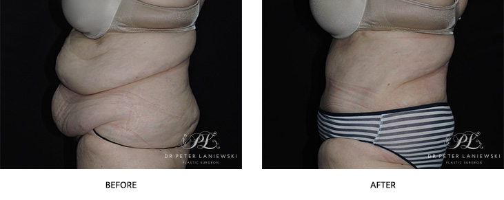 tummy tuck - abdominoplasty - before and after - image 002