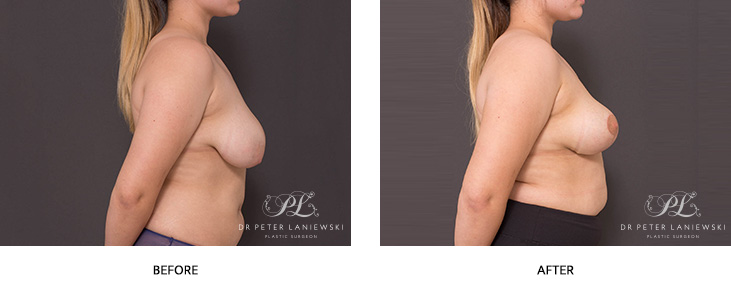 breast reduction before and after - image 001