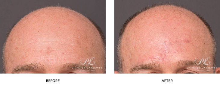 skin cancer surgery before and after - image 001