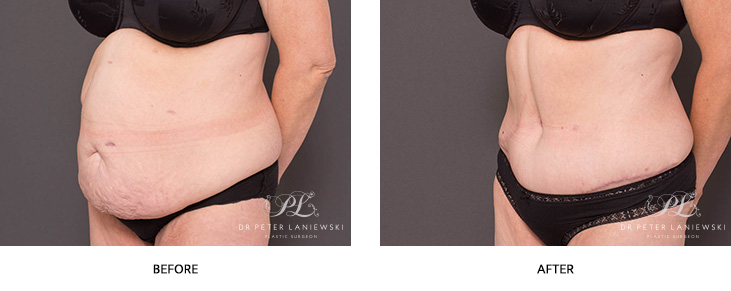 tummy tuck before and after - image 003