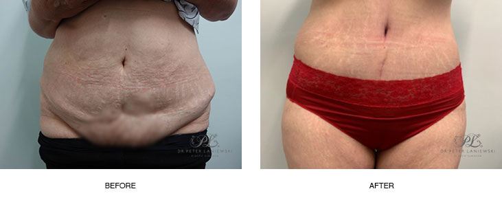 tummy tuck before and after - image 001 - new