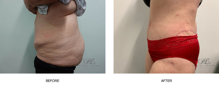 tummy tuck before and after - image 002 - new