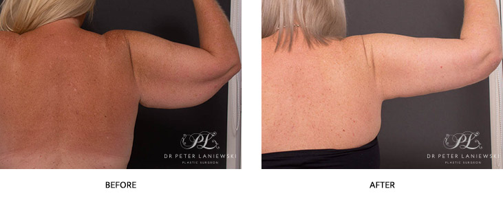 arm lift before and after - image 002