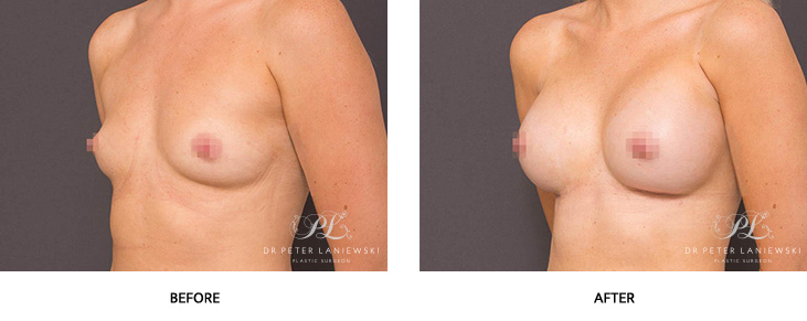 breast lift with implants - before and after - image 003