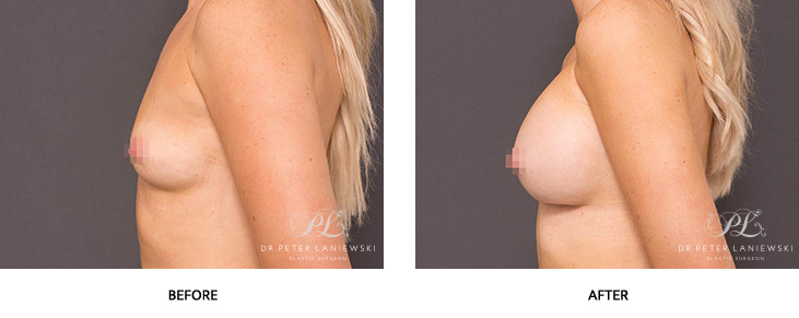 breast lift before and after - image 004
