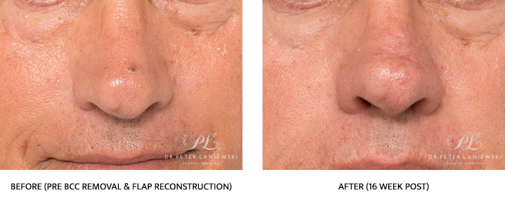 skin cancer surgery before and after - image 002