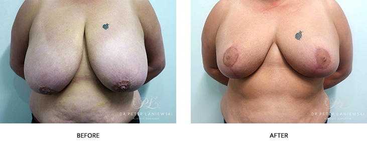 breast reduction surgery - before and after gallery - patient 02 - front view