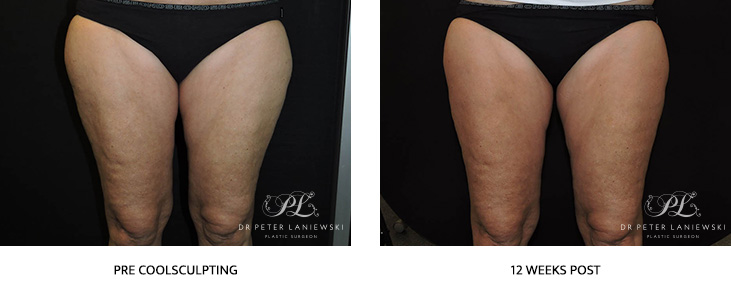 leg coolsculpting before and after - image 001